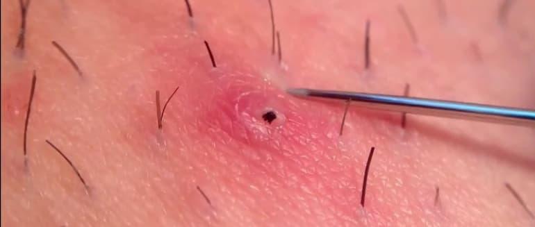 Įaugę plaukeliai - kodėl jie atsiranda ir kaip juos pašalinti?