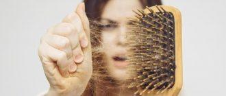 Plaukų slinkimas: priežastys ir gydymo būdai